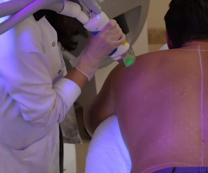 How Does Laser Hair Removal Work?